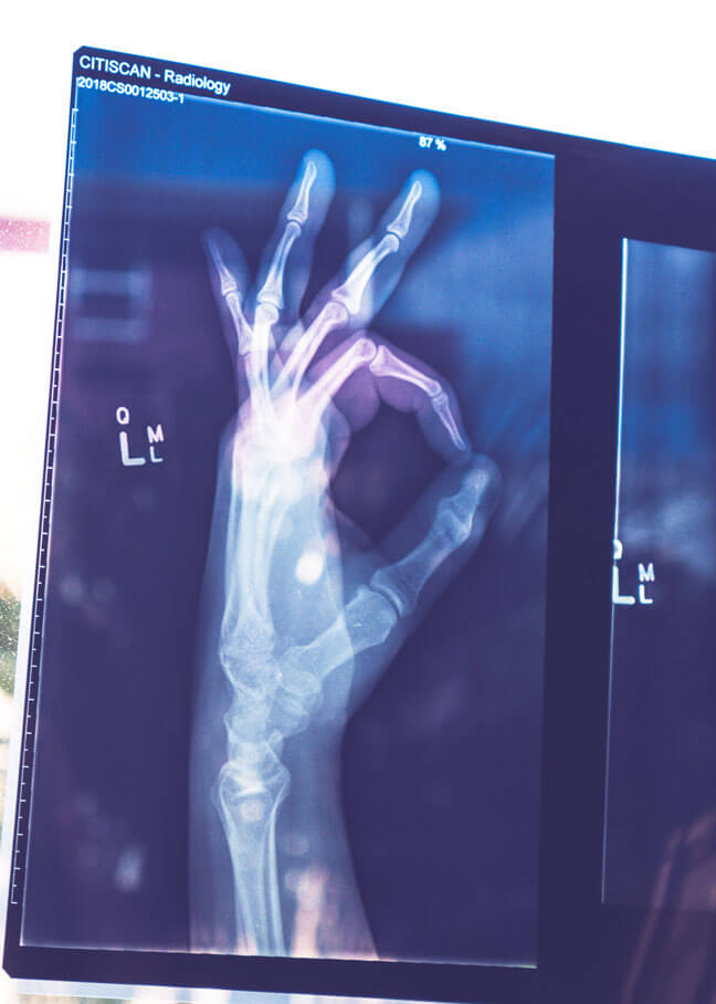 xray of hand doing okay gesture